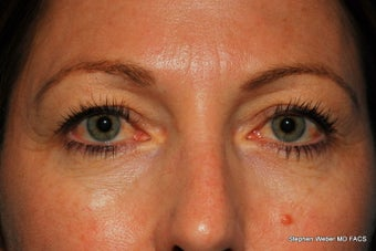 Eyelid Surgery before 1441867