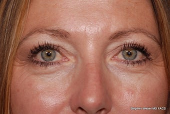 Eyelid Surgery after 1441867