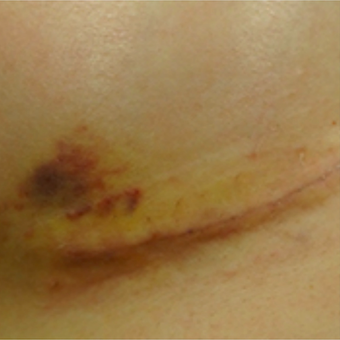 Breast Augmentation Scar Treated with embrace® before 2864548