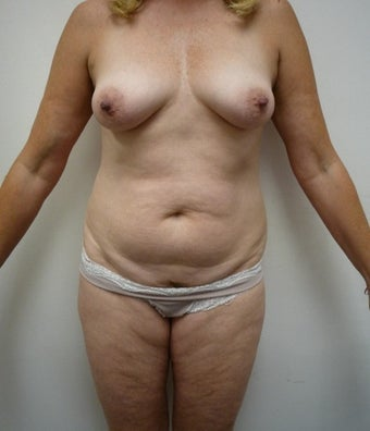 55-64 year old woman treated with Mommy Makeover before 1650234
