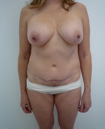 55-64 year old woman treated with Mommy Makeover after 1650234