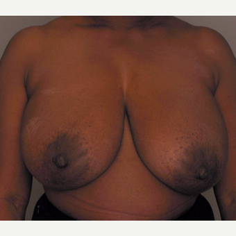 45-54 year old woman treated with Breast Reduction with Left Breast Reconstruction before 3423237