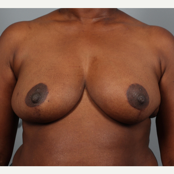 45-54 year old woman treated with Breast Reduction with Left Breast Reconstruction after 3423237