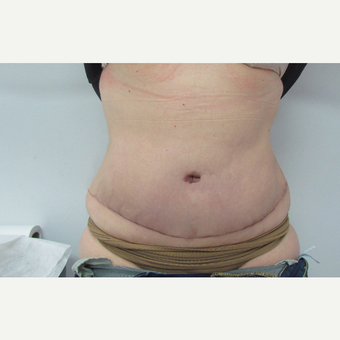 45-54 year old woman treated with Tummy Tuck after 3663937