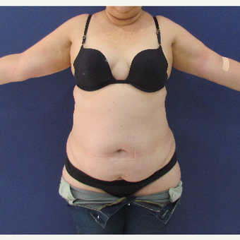 45-54 year old woman treated with Tummy Tuck before 3663937