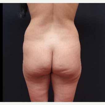 25-34 year old woman treated with Tumescent Liposuction before 3267175