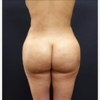 25-34 year old woman treated with Tumescent Liposuction after 3267175