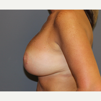 Breast Lift after 3027393