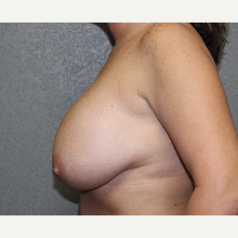 Breast Lift before 3027393