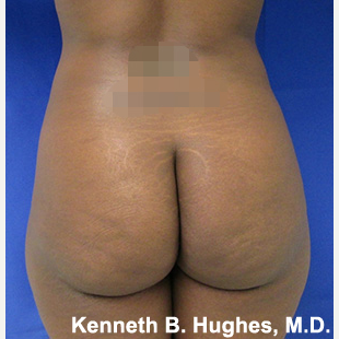 Liposuction before 3094234