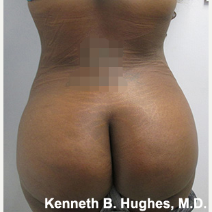 Liposuction after 3094234