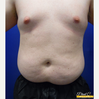 25-34 year old man treated with Liposuction before 3610130