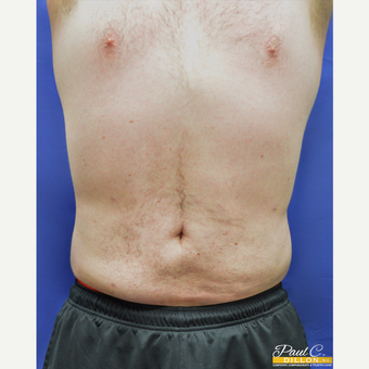 25-34 year old man treated with Liposuction after 3610130