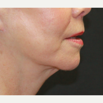 55-64 year old woman treated with Facelift after 3769132