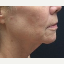 55-64 year old woman treated with Facelift before 3769132