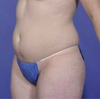 25-34 year old woman treated with Vaser Liposuction before 1746100
