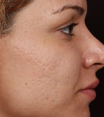 Fraxel Restore for Indented Acne Scarring