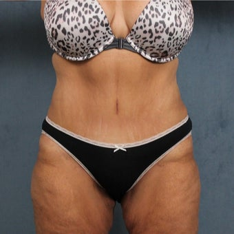 45-54 year old woman treated with Tummy Tuck after massive weight loss after 2108953
