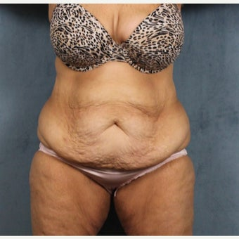 45-54 year old woman treated with Tummy Tuck after massive weight loss before 2108953