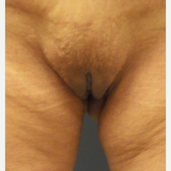 45-54 year old woman treated with Labiaplasty after 3169377