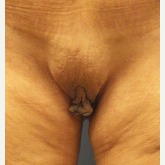 45-54 year old woman treated with Labiaplasty before 3169377
