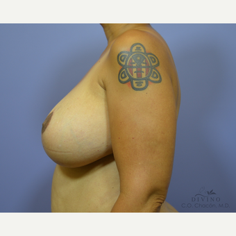 45-54 year old woman treated with Breast Lift after 3329487
