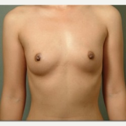18-24 year old woman treated with Breast Augmentation before 3326794