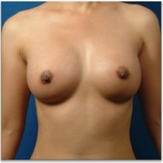 18-24 year old woman treated with Breast Augmentation after 3326794