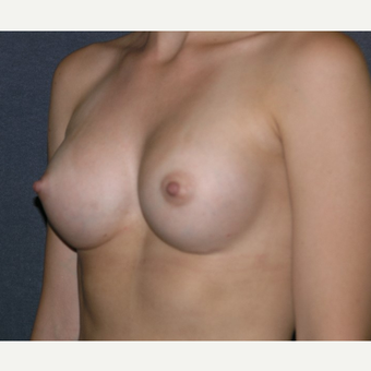 18-24 year old woman treated with Breast Implants after 3455656