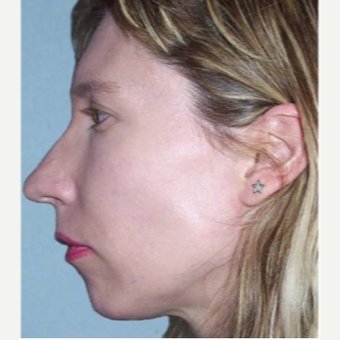 35-44 year old woman treated with Chin Implant before 3719142