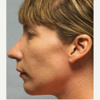 35-44 year old woman treated with Chin Implant after 3719142