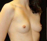 Breast Augmentation before 1301617