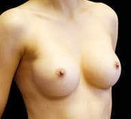 Breast Augmentation after 1301617