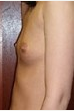 25-34 year old woman treated with Breast Implants 3088610
