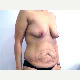 33 year old woman treated with Mommy Makeover before 2550220
