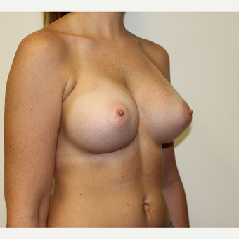 Breast Augmentation after 3417737
