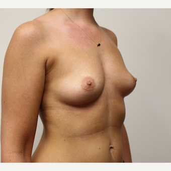 Breast Augmentation before 3417737
