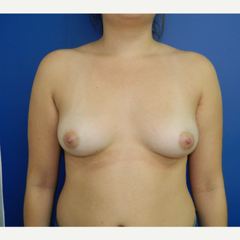 22 year old woman treated with Breast Augmentation before 3293724