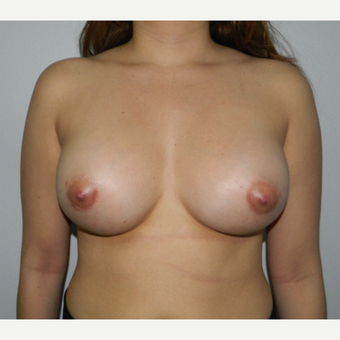 22 year old woman treated with Breast Augmentation after 3293724