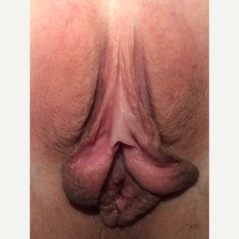 19 y.o. labiaplasty  before 3310001