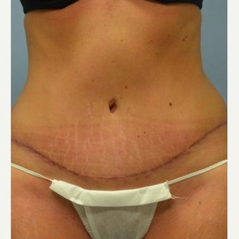 35-44 year old woman treated with Tummy Tuck after 1803397