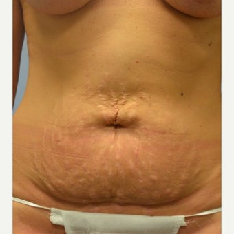 35-44 year old woman treated with Tummy Tuck before 1803397