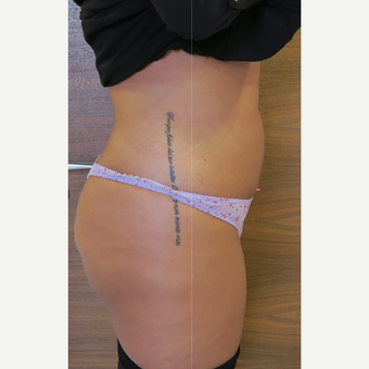 25-34 year old woman treated with Liposuction after 3499872