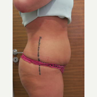 25-34 year old woman treated with Liposuction before 3499872