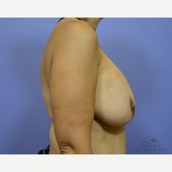 25-34 year old woman treated with Breast Lift with Implants before 3419902