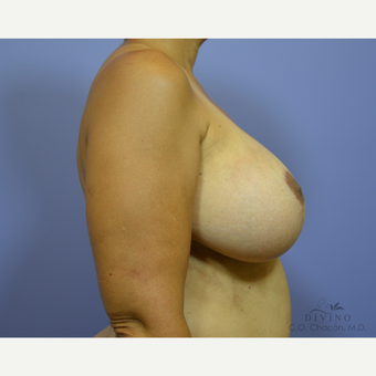 25-34 year old woman treated with Breast Lift with Implants after 3419902
