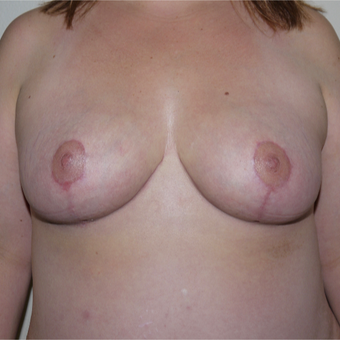 35-44 year old woman treated with Breast Reduction after 3105640