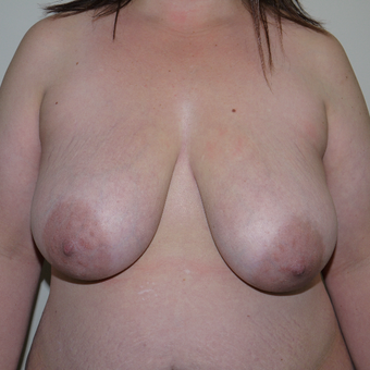 35-44 year old woman treated with Breast Reduction before 3105640