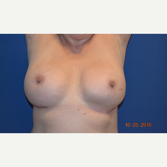 55-64 year old woman treated with Breast Implant Revision after 3663832