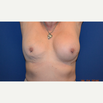 55-64 year old woman treated with Breast Implant Revision before 3663832